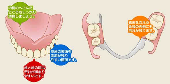 義歯(入れ歯)の清掃について