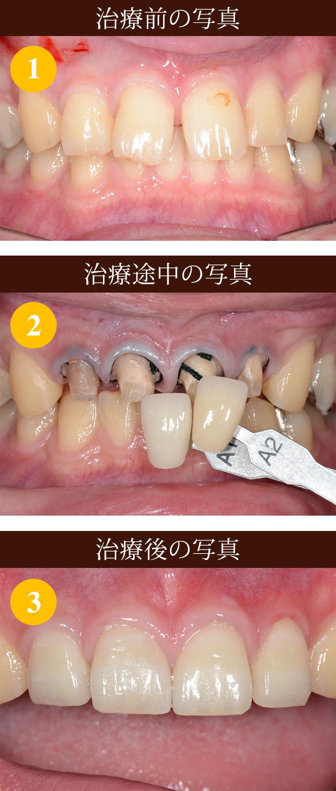 空隙歯列 (すきっ歯) 難治療 ①写真