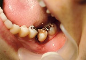 歯牙移植術写真術後