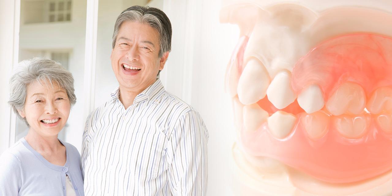 義歯(入れ歯)治療とは