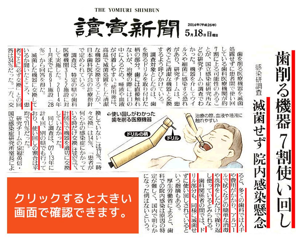 讀賣新聞 2014年(平成26年)5月18日 日曜日 「歯を削る機器7割使い回し ~感染研調査 滅菌せず院内感染懸念~」