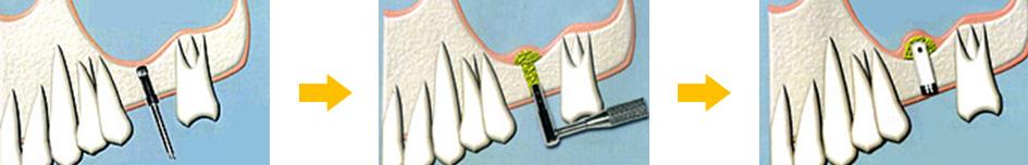 難症例治療法のイメージ「ソケットリフト法」
