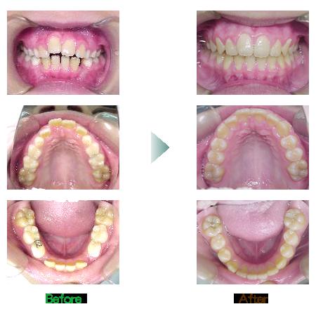 歯列前矯正 症例1