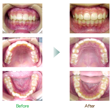 歯列前矯正 症例2