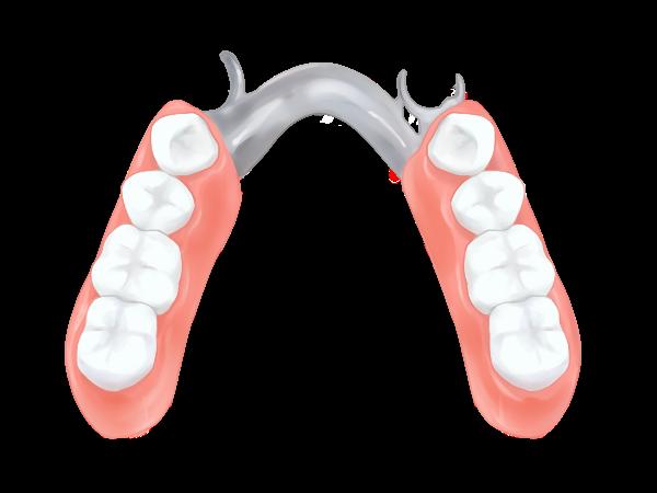 クラスプ義歯