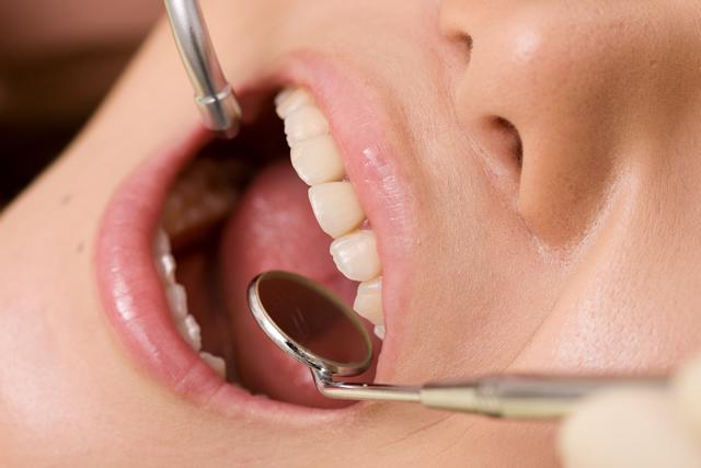 歯周病予防対策