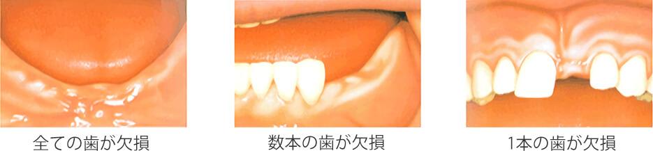 左:全ての歯が欠損、中:数本の歯が欠損、右:1本の歯が欠損