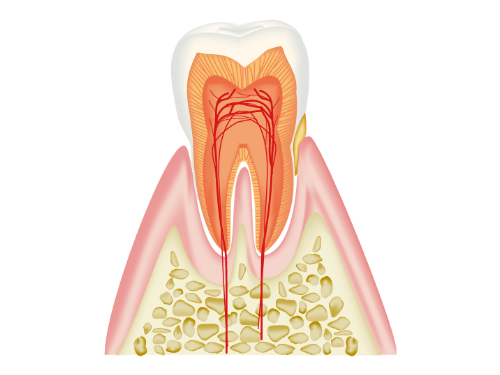 歯を失う主な原因 歯周病