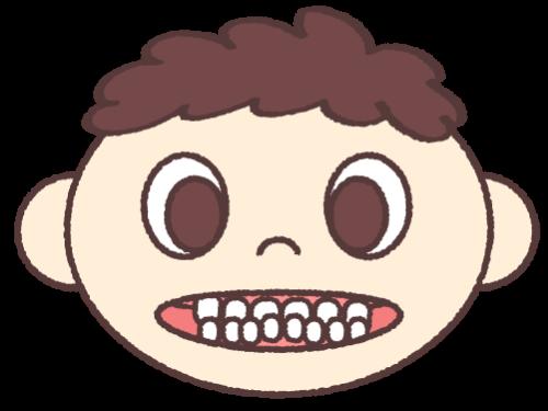 下顎前突 (受け口・反対咬合)