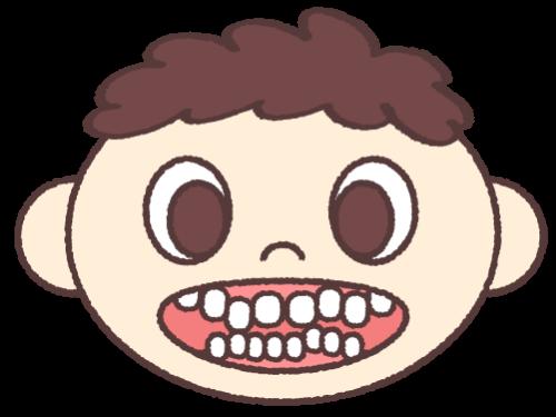 叢生 (八重歯・乱ぐい歯)