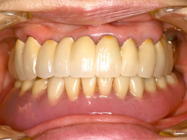 症例1 上顎インプラント ソケットリフト法 - 術後(上部構造セット後)写真
