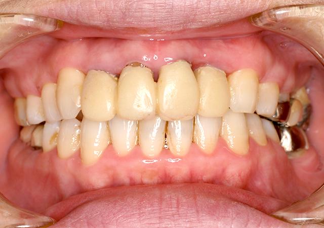 症例1 歯周病の治療 - 術中写真(正面)