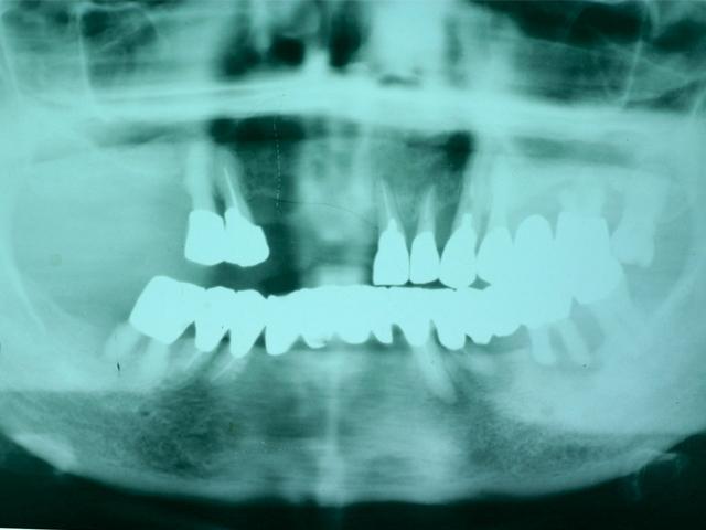 症例1 上顎インプラント ソケットリフト法 - 術前写真(パノラマX線写真)