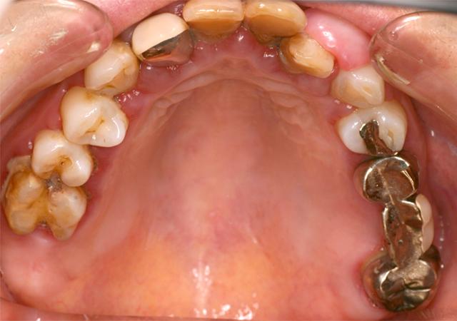 症例1 歯周病の治療 - 術前写真(上顎)