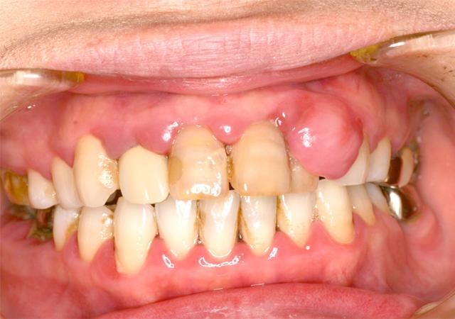 症例1 歯周病の治療 - 術前写真(正面)
