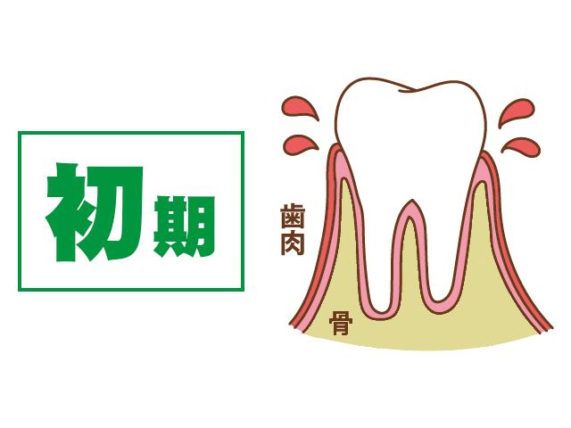 [進行度1] 歯ぐきがはれて出血する