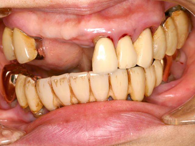 症例1 上顎インプラント ソケットリフト法 - 術前写真