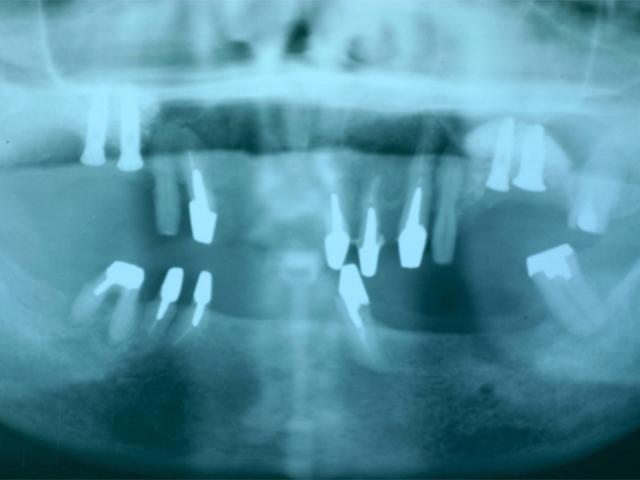 症例1 上顎インプラント ソケットリフト法 - 術中(インプラント埋入後)写真