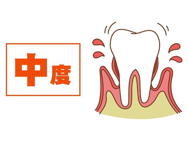 [進行度3] 歯がぐらつく