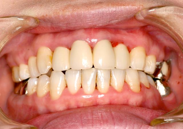 症例1 歯周病の治療 - 術後写真(正面)