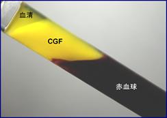遠心後、CGFが作成されます。