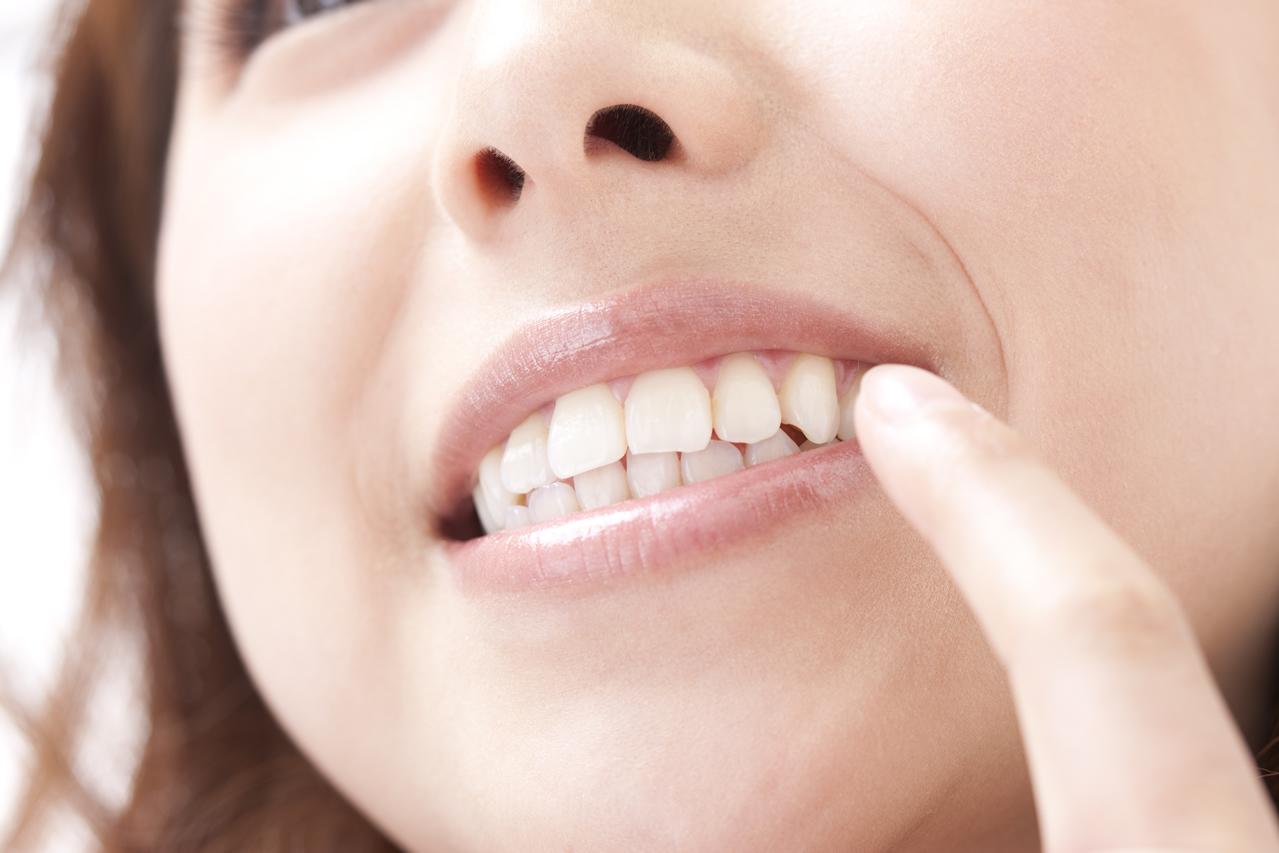 白い歯(審美素材について)