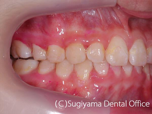 抜歯をしない矯正治療症例6