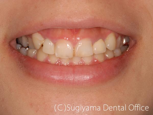 審美歯科症例4 術前