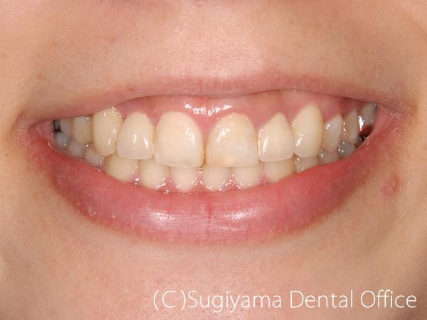 審美歯科症例4 術後