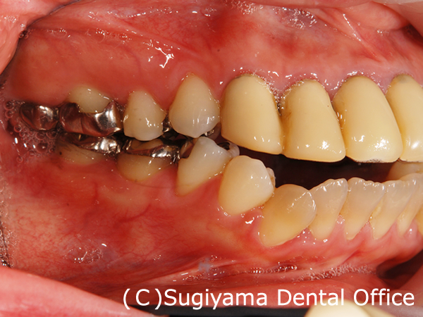 審美歯科症例7
