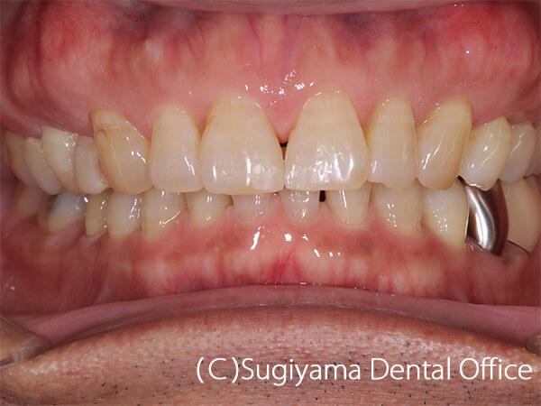 審美歯科症例6 術後1