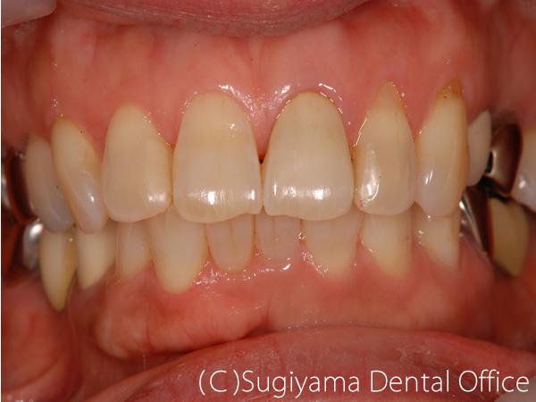 審美歯科症例3 術後