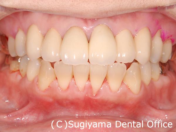 審美歯科症例5 術後1