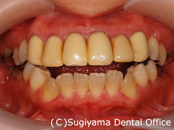 審美歯科症例5 術前1