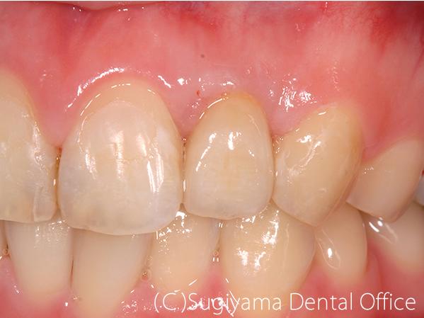 歯周治療症例4 術後