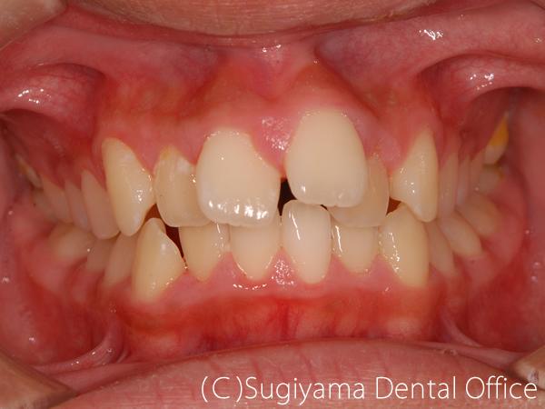 矯正歯科症例4 術前
