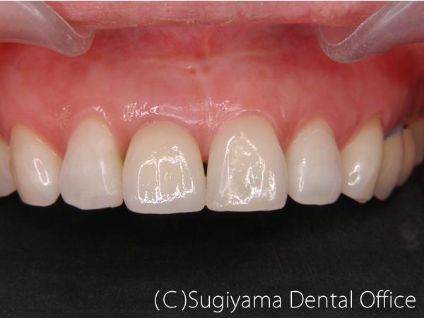 審美歯科症例1 術後