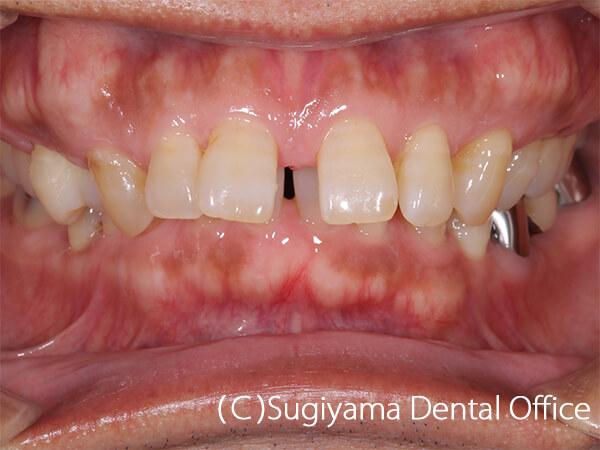 審美歯科症例6 術前1