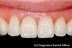 審美歯科治療症例