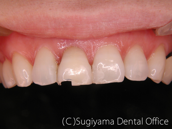 審美歯科症例1 術前