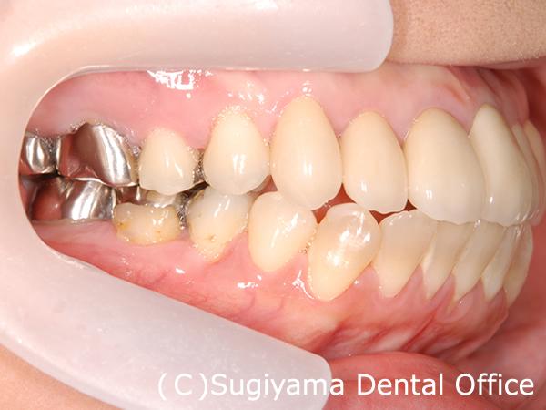 審美歯科症例5 術後3