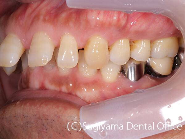 審美歯科症例6 術前2