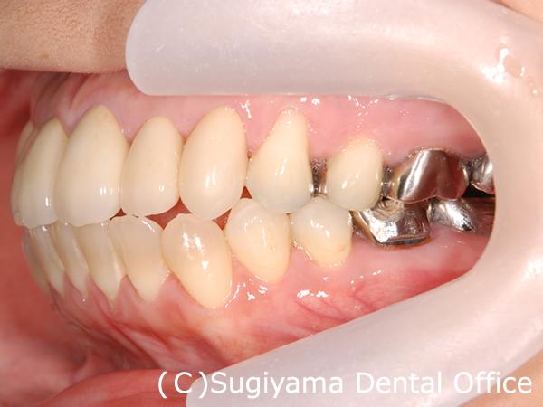 審美歯科症例5 術後2