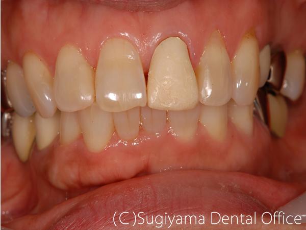 審美歯科症例3 術前