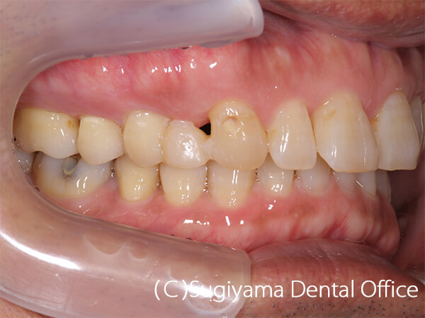 審美歯科症例6 術後3