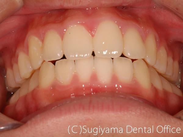 矯正歯科症例4 術後