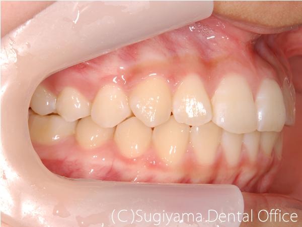 矯正歯科症例5 術後