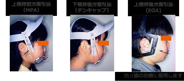 帽子を用いた矯正治療法