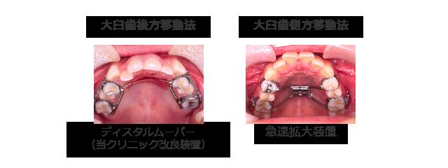 歯を抜かない矯正治療法(非抜歯矯正治療法)