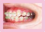 歯を抜かない症例 STEP6